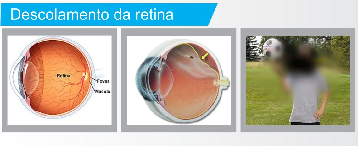 Inforgráfico descolamento de retina (tratamento em Curitiba)
