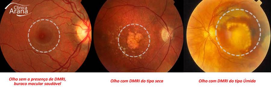 À direita olho saudável, no centro DMRI do tipo seca e à direita DMRI do tipo úmida