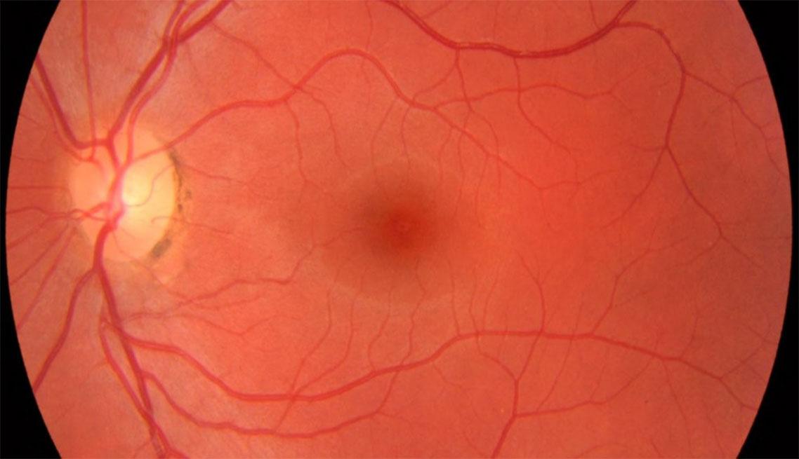 Detalhe da Retina exame retinografia