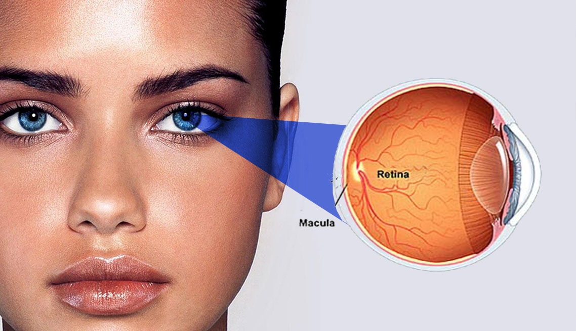 cirurgia retina curitiba