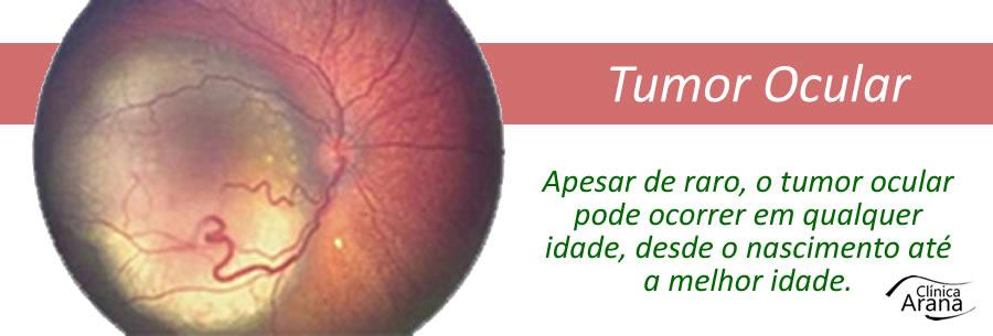 Tratamento para tumor ocular em curitiba