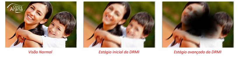 estágios da degeneração macular dmri curitiba