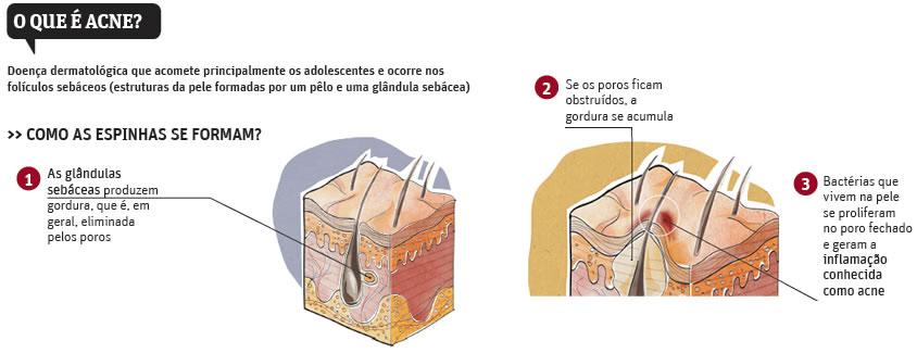 imagem de como se formam as acnes e espinhas na pele
