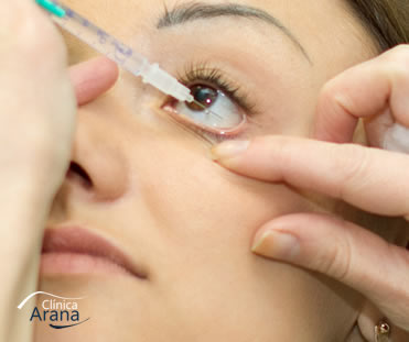 injeção intra ocular curitiba