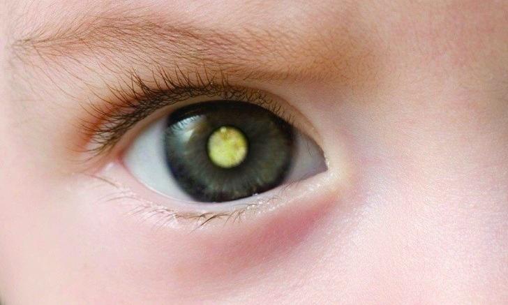 Retinoblastoma Infantil