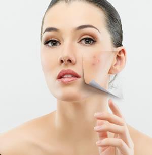 tratamento para acne em curitiba