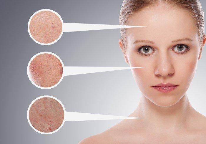 peeling-curitiba-dermatologia